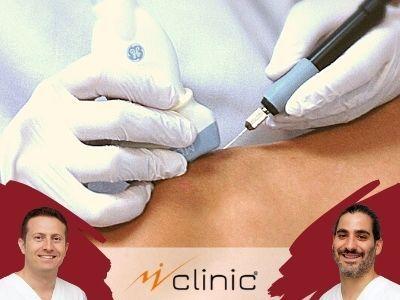 Electrolisis Percutania MVClinic Curso Kenzen